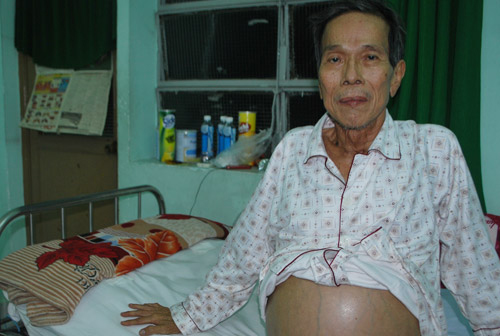 nghe si thanh luy: ban nha, xe theo nghiep dien, cuoi doi ngheo kho hinh anh 3