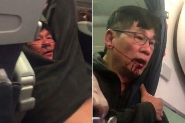 """""""hang united airlines co the con chua dam nghi den thiet hai"""" hinh anh 1"""