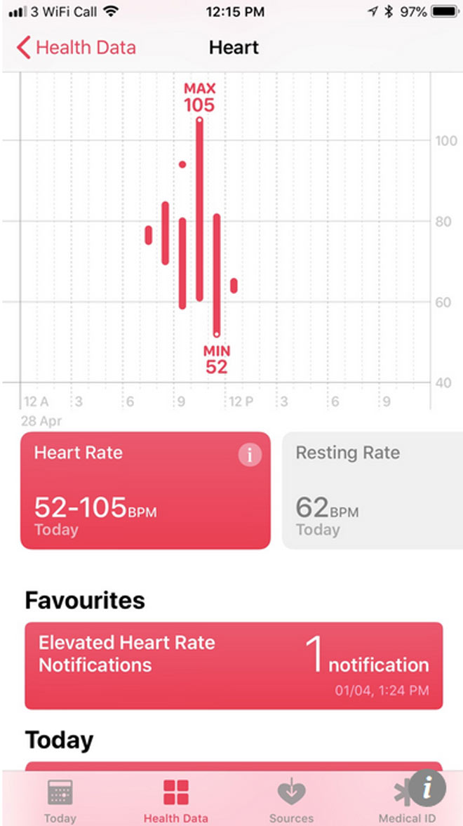 dong ho apple watch cuu song than ky cu ong 76 tuoi hinh anh 1